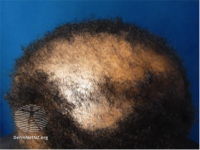 balding area on top of head