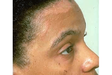 Seborrheic dermatitis on a woman's forehead, eyelids, and nose