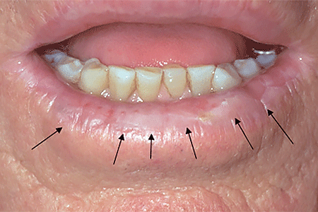 A white, rough-feeling patch on this patient's lip is a precancerous skin growth called actinic keratosis