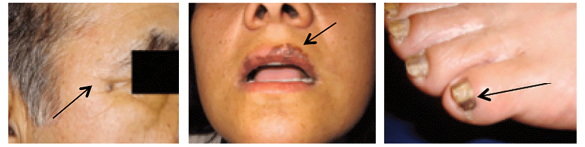 Skin cancer in Latinos