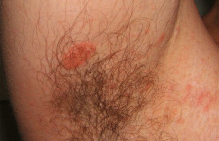 Pityriasis rosea on man's underarm