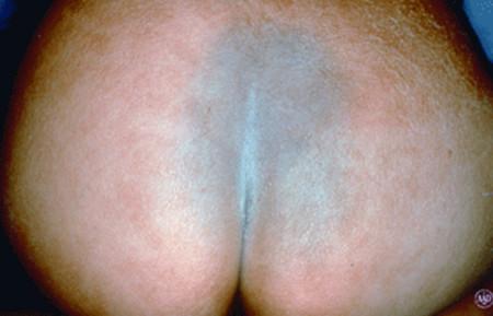 Mongolian spot on buttocks