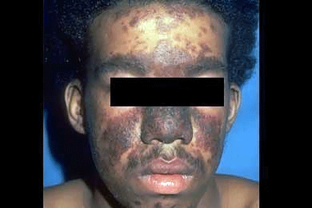 A common sign of accute cutaneous lupus is butterfly rash