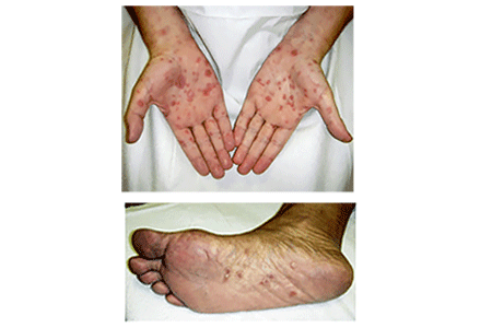 Syphilis rash on palms of hands and soles of feet
