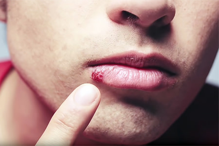Young man with cold sore on lip