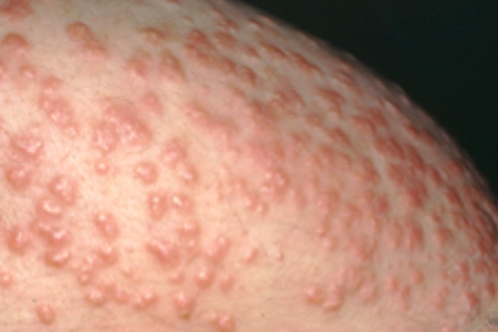 Eruptive xanthomatosis bumps can often look like pimples