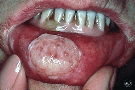 Close-up of a sore inside a patient's mouth which grew to become squamous cell carcinoma