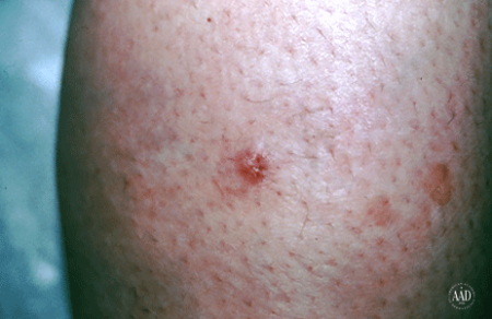 A red spot on this patient's shin tested positive for Merkel cell carcinoma