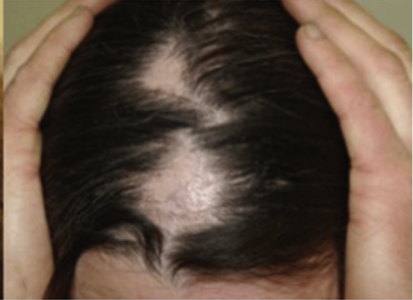 person showing bald patch on head