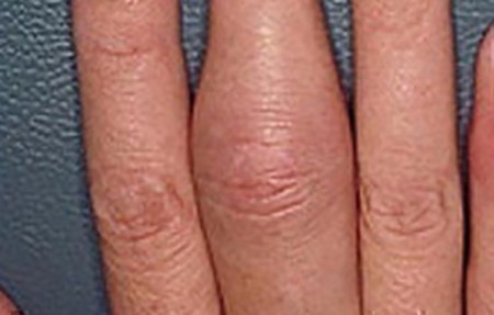 Psoriatic arthritis can cause a finger or toe to swell dramatically. Called sausage digit