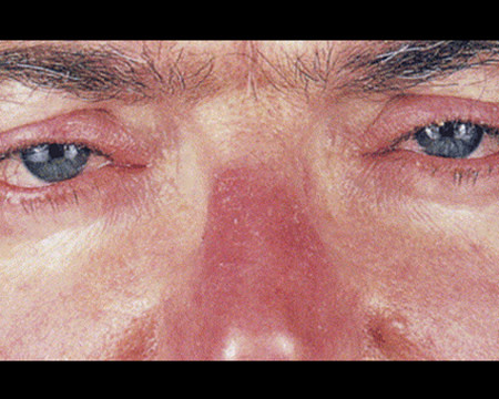 man with rosacea on nose and eyes