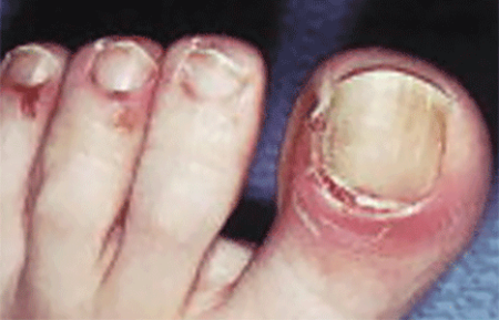 Pemphigus can affect the nails and surrounding skin