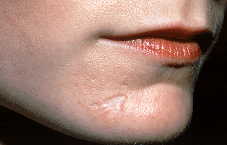 Scar on woman's chin