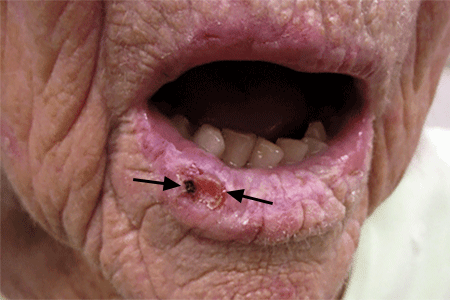 A recurring sore on this patient's lip is squamous cell carcinoma skin cancer