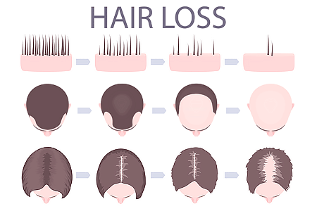 Illustration of male and female pattern hair loss.