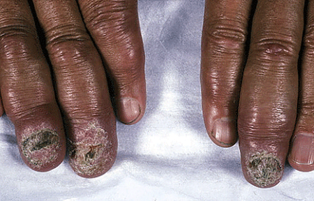 As sarcoidosis worsens, the nails can disappear and the fingertips swell
