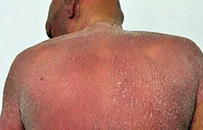 Sézary syndrome can cause widespread redness