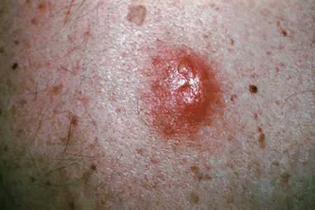 Close-up of a melanoma that looks like a cyst