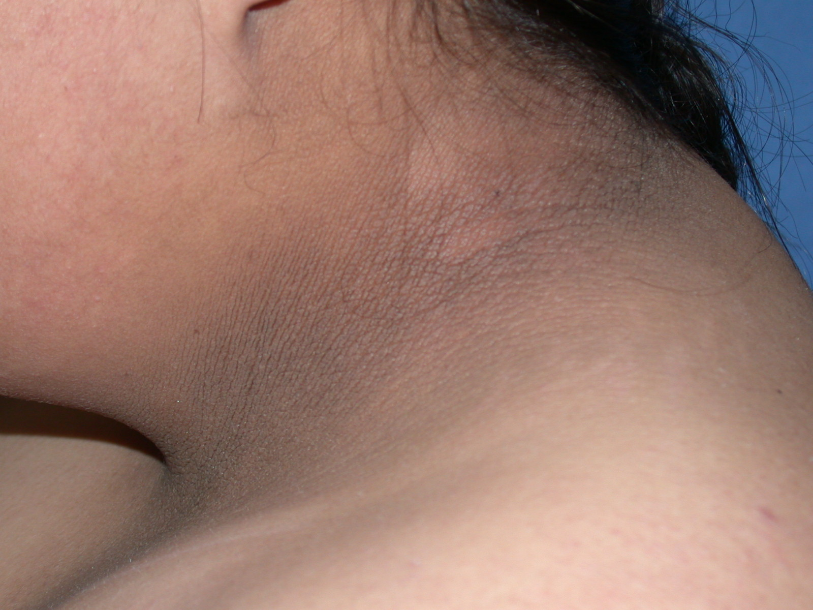 Image of a neck with acanthosis nigricans