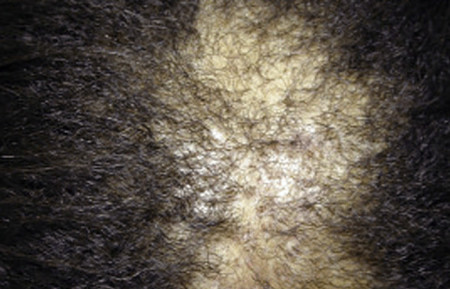 Close-up of scarring on scalp
