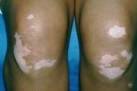 Vitiligo skin disease on the knees