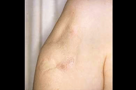 Lupus panniculitis scars on woman's arm