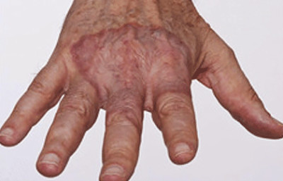 Granuloma annulare often causes a slightly raised patch on your skin