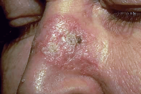 Discoid lupus often looks like a raised, thick, scaly patch