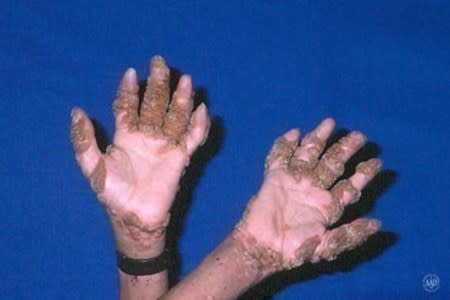 Warts cover the hands of a boy with HIV