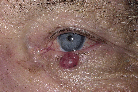 A dome-shaped mass on this patient's lower eyelid tested positive as Merkel cell carcinoma