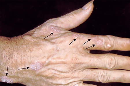The white, scaly, wart-like growths on this patient's hand are actinic keratosis precancerous skin growths.