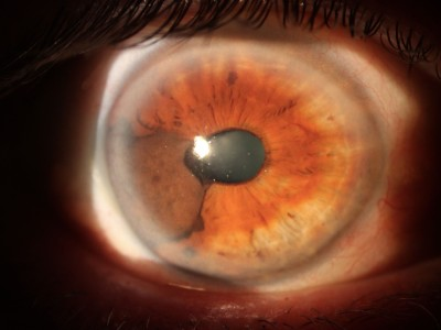 Image for DWII on uveal melanoma