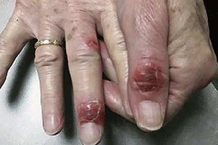 Skin reaction on the hands of a woman who was treated with targeted cancer therapy