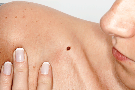 Woman looking at brown spot on shoulder