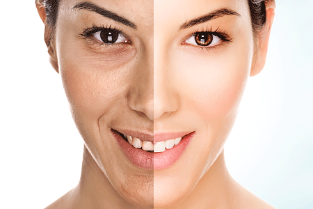 Model face is divided in two parts - aging on the left and younger on the right