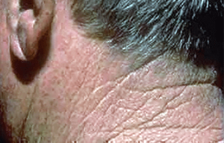 Rough-feeling patch of skin on back of a man's neck is a symptom of actinic keratosis