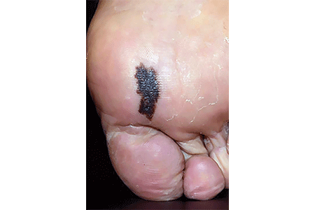 Melanoma on the bottom of a foot