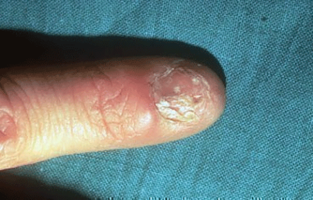 Lichen planus on a fingernail