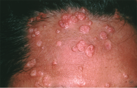 Molluscum contagiosum large bumps on man's forehead