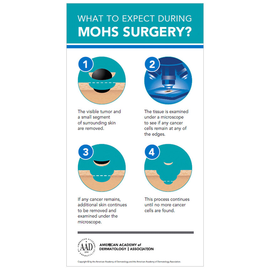 What Is Mohs Surgery