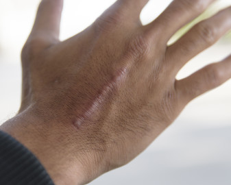 Keloid scar on the back of the hand of an African American man.