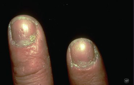 Psoriatic arthritis nails