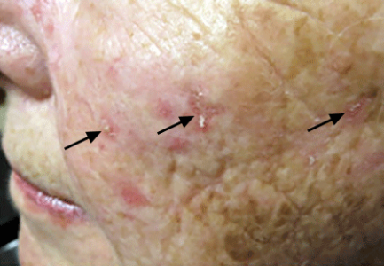 Rough, scaly bumps on this woman's face are actinic keratoses