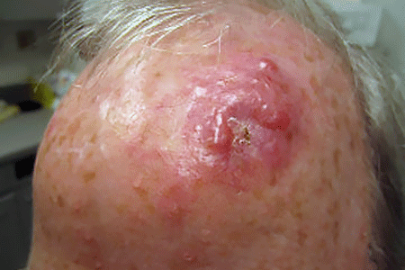 A fast-growing mass on the forehead of this man's head is Merkel cell carcinoma
