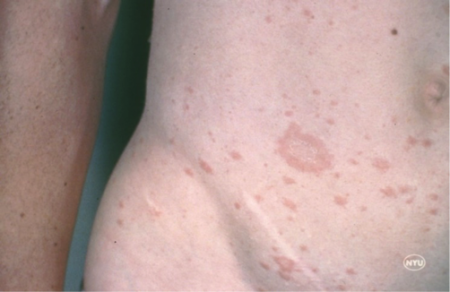 Pityriasis rosea light herald patches