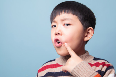 A child pointing at a cold sore on his face