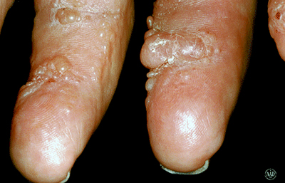 Nodules of systemic amyloidosis on fingers