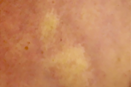 Close-up of scleroderma morphea patches on the skin