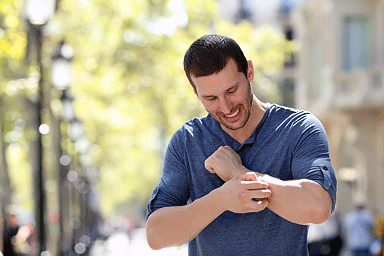 Adult man scratching itchy arm while standing outside