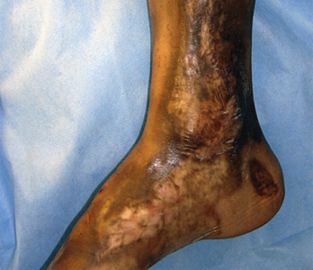 Linear morphea on lower leg and foot